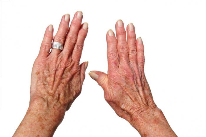 آرتروز دست