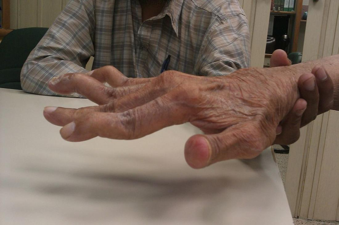 تغییر شکل گرذن و انگشت