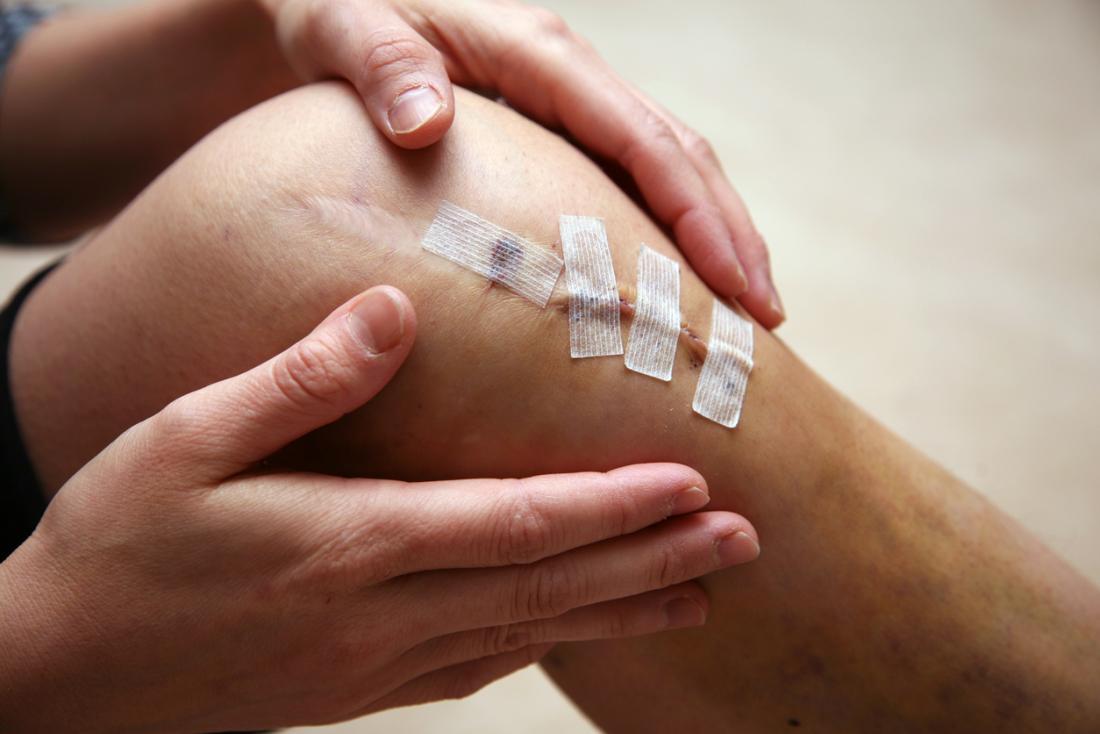 ده آسیب های زانو و درمان معمول