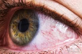 قزمزی چشم