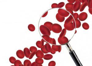 چگونه کم خونی را با تغذیه درمان کنیم