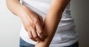 خارش: علل و درمان این ناراحتی