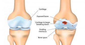 بیماری از بین رفتن غضروف زانو یا استئوآرتریت زانو